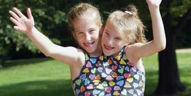 conjoined twins Abby and Brittany Hensel